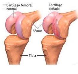 Tratamiento Conservador de la Artrosis