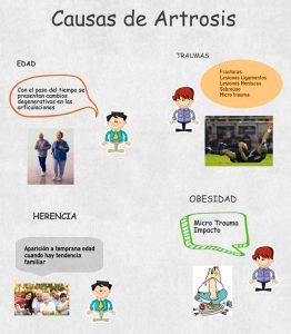 Causas de la Artrosis
