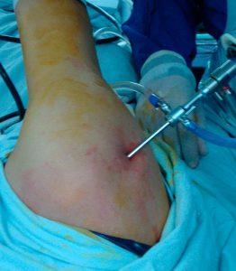 Que es la Artroscopia y para qué sirve