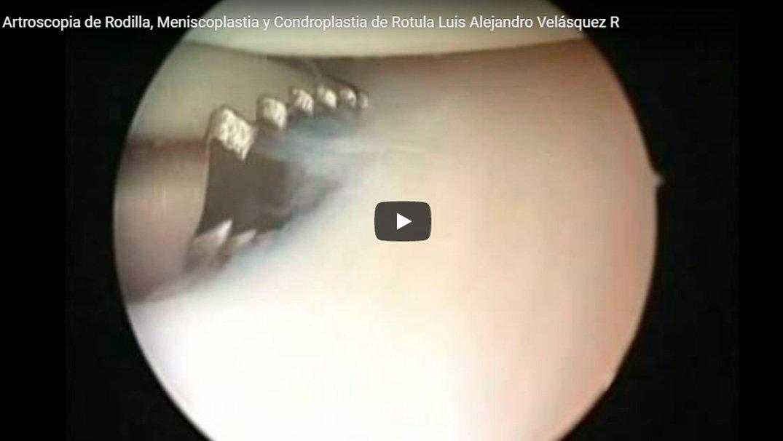 Meniscoplastia del Menisco Lateral y Condroplastia de Rótula