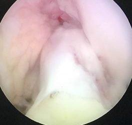 Tenodesis Antero Lateral de Rodilla, Ligamento Antero Lateral