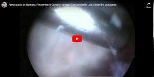 Pinzamiento Coraco-Humeral, Coracoplastia