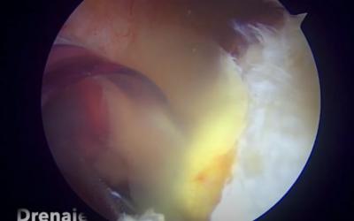 Compresión del Nervio Supraescapular por Quiste Para-Labral Posterior del Hombro